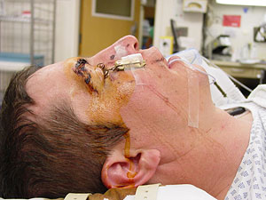 Fishing Accident Leaves Man With Hook In His Eye