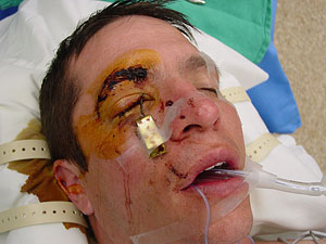 Fishing accident leaves man with hook in his eye for Fishing hook accidents